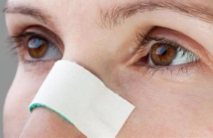 Bandaged Nose