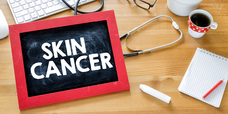 How to Prevent Skin Cancer by Dr. Mark A. Chastain
