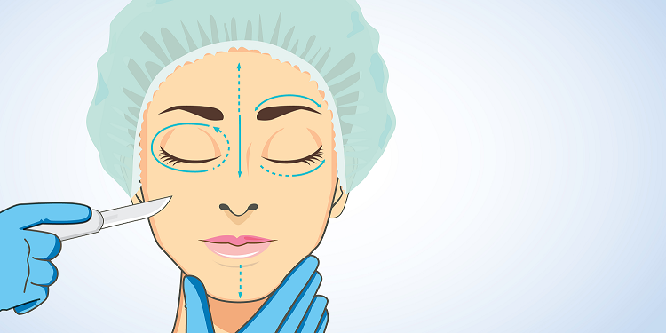 Facelift Recovery Time Featured Image