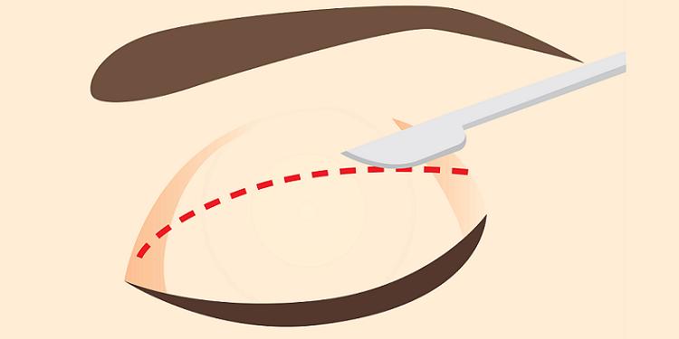 Knife on the eyelid along incision line