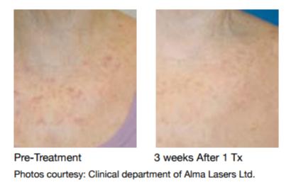 Dye-VL Treatment for Pigmented & Vascular Lesions | MD com Blog
