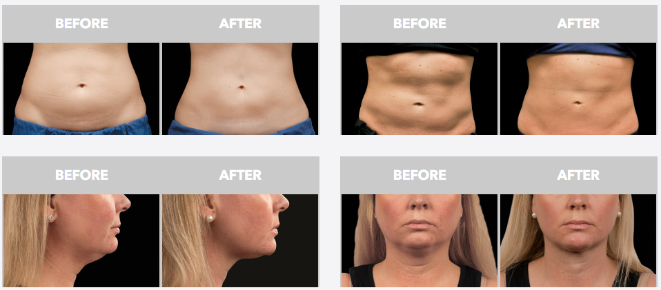 Are CoolSculpting results permanent? – CoolSculpting Q&A