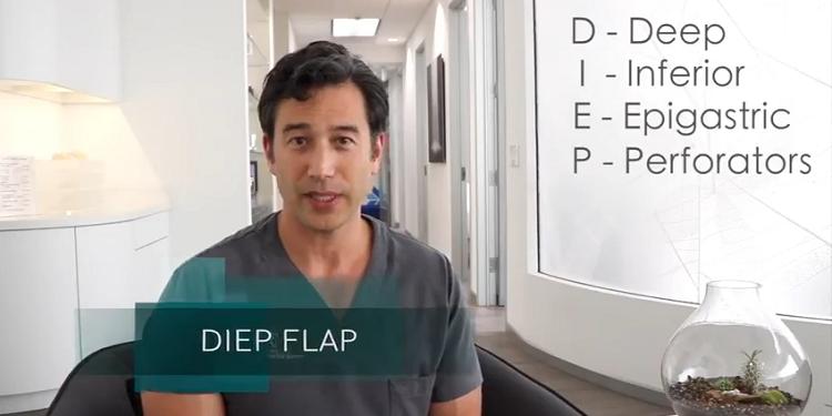 DIEP Flap Breast Reconstruction