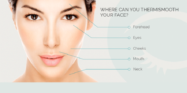 ThermiSmooth Face Areas